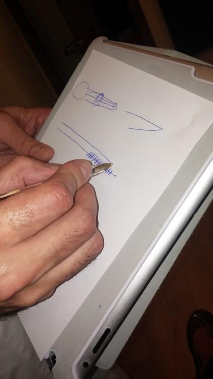 Ο γιατρός μου ζωγραφίζει τα νήματα εξηγώντας μου όλη την διαδικασία
